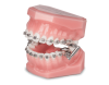 INTRA/EXTRA ORAL DEVICES